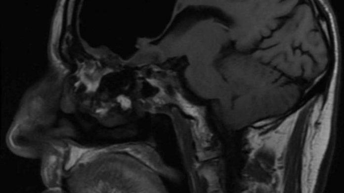 Doc find air pocket where part of man's brain should be