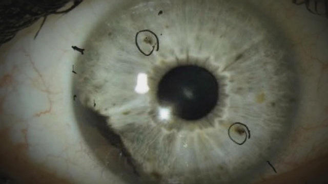 Rare Eye Cancer Ocular Melanoma Has Started to Appear in two States