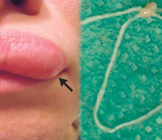 Moving lump on woman's face turns out to be worm (Picture)