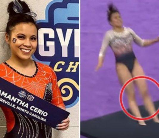 Gymnast breaks both legs during floor routine, Report