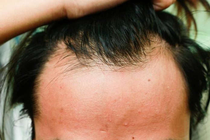 US Researchers Announce 'Critical Breakthrough' In Treatment For Baldness