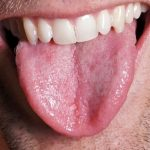 Losing tongue fat improves sleep apnea, According to Study