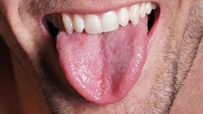 Losing tongue fat improves sleep apnea, According to Study