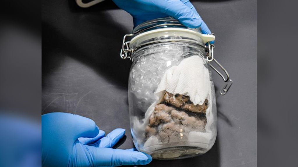 US border officials find human brain in package shipped from Toronto