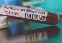 Coronavirus Canada Updates: New Brunswick to provide COVID-19 update on Thursday