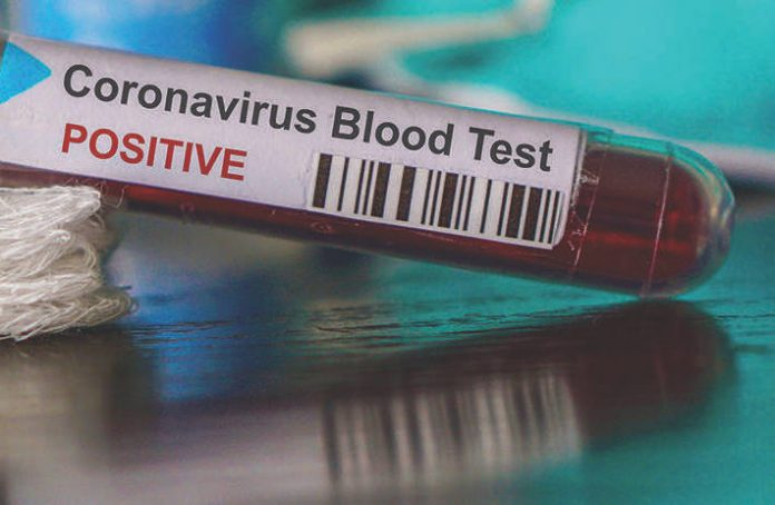 Coronavirus Canada updates: Saskatchewan continues to identify cases in 'communal living settings' after record-high testing