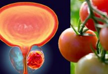 Researchers Find Confirmed Link Between Prostate Cancer Prevention And A Healthy Diet