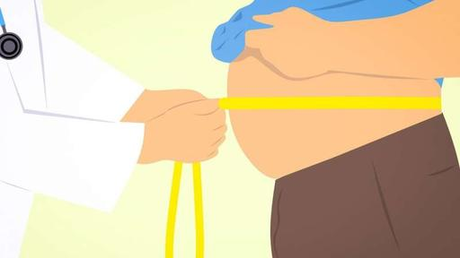 New obesity guidelines focus on root causes, Report