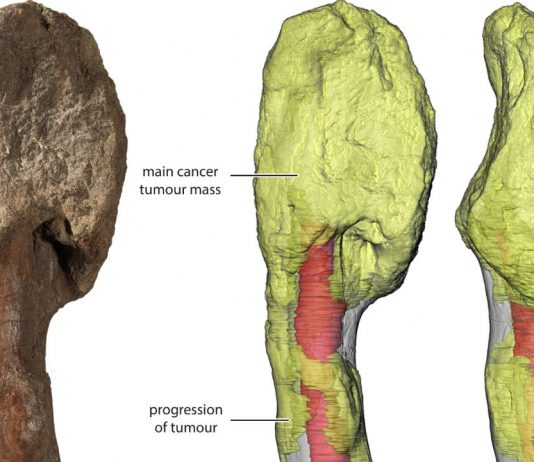 Researchers Identify Cancer in a Dinosaur Fossil for the First Time
