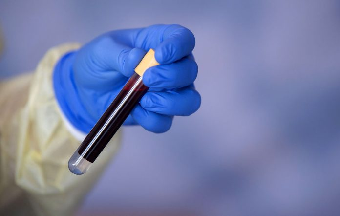 Scientists find blood type has resistance to Covid-19 infection