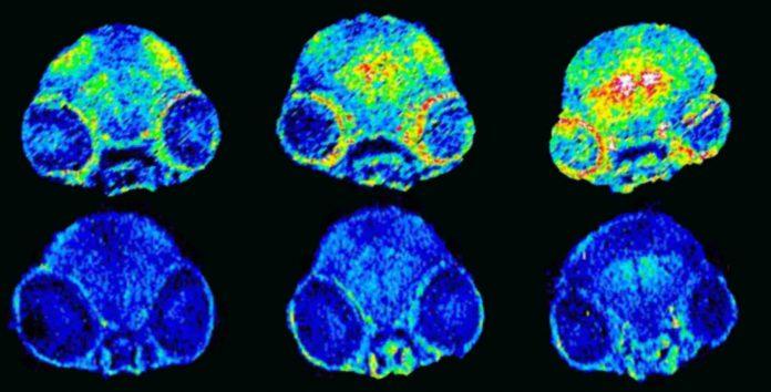 Alzheimer's disease: regulating copper in the brain stops memory loss among mice (Study)