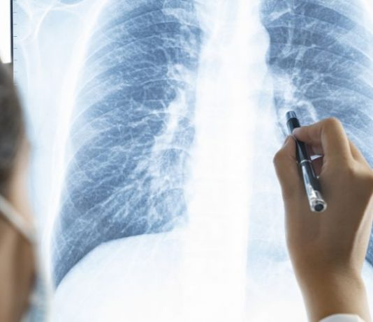 Post-COVID lungs worse than the worst smokers' lungs, Study Finds