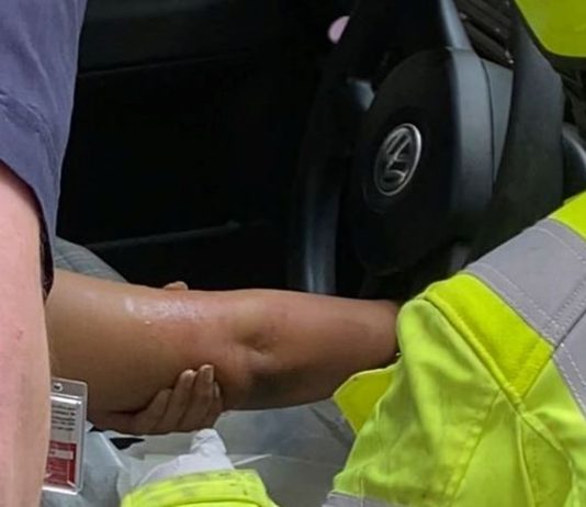 Woman calls 911 after getting arm stuck in steering wheel (Video)